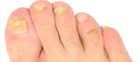足の爪が崩れてるボロボロ