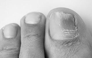 足の爪の異常、病気